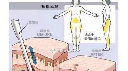 腿部吸脂手术的术后护理及价钱