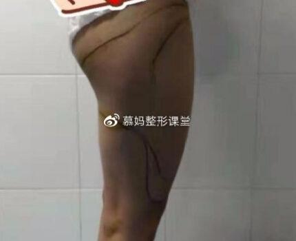 告别大粗腿的噩梦,大腿吸脂术后分享