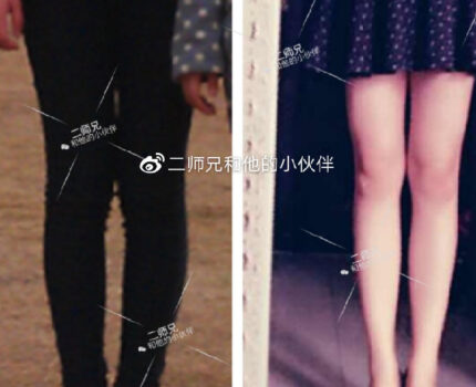 纠正xo型腿,恢复细长直本貌