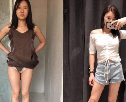 广州大腿吸脂40天术前术后对比!