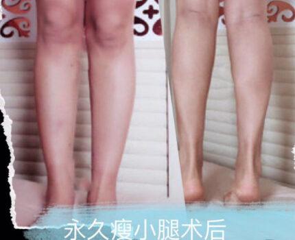 小腿肌肉隆起,有肌肉块,怎么办最有效?